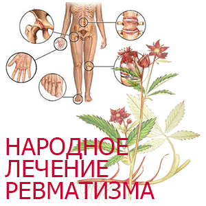 Лечение ревматизма - народные рецепты