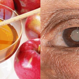 Капли для лечения катаракты (мед, яблоко)