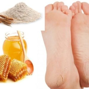 Маска для кожи стоп и пяток (мед, мука)