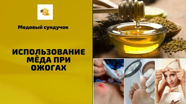 Использование мёда при ожогах