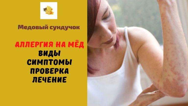 Аллергия на мёд — Виды. Симптомы. Проверка. Лечение