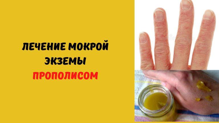 Рецепт от мокнущей экземы рук из прополиса