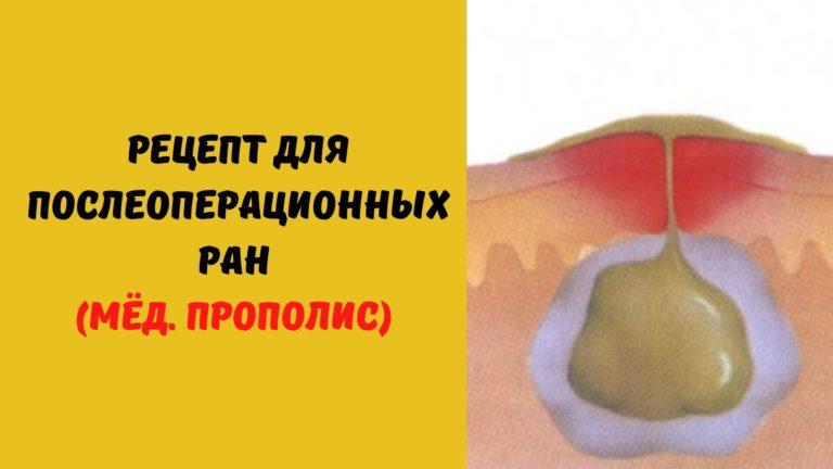 Рецепт для послеоперационных ран (Мёд. Прополис)