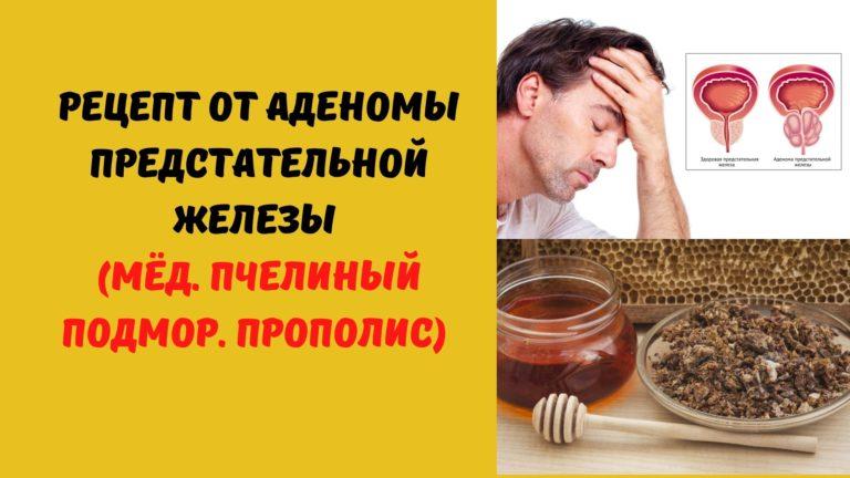 Рецепт от аденомы предстательной железы (Мёд. Подмор.Прополис)