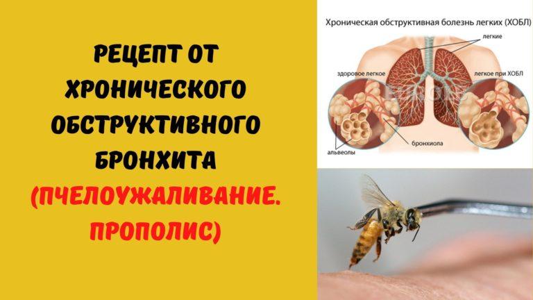 Рецепт от хронического обструктивного бронхита (Пчелоужаливание. Прополис)
