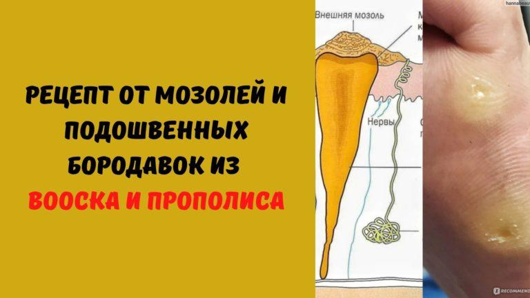 Рецепт от мозолей и подошвенных бородавок из воска и прополиса