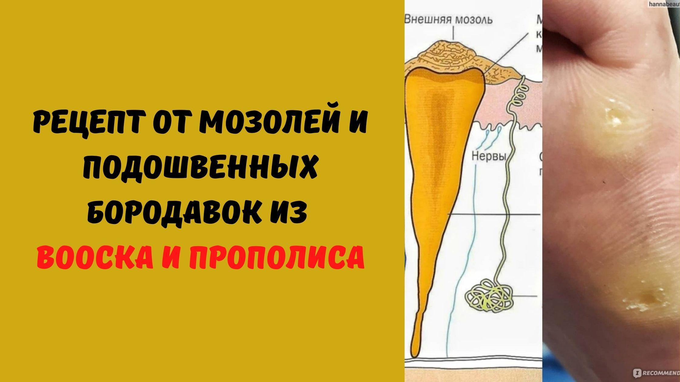 рецепт от мозолей и бородавок
